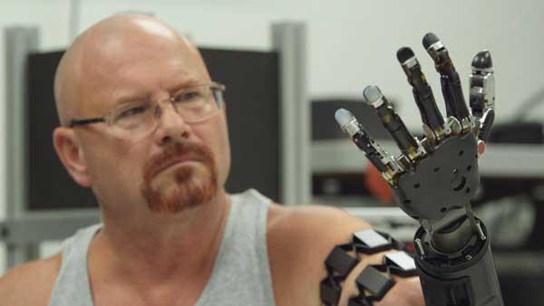 Primer hombre con un brazo artificial funcional